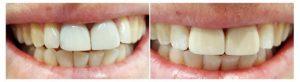 cosmetic dentistry st kilda