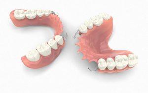 dentures St Kilda