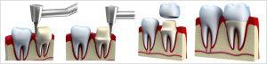 Dental Crowns in Balaclava